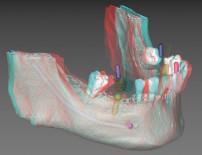 飯塚市の歯医者でインプラント歯科用3DデジタルCT診断でより確実・安全なインプラント治療