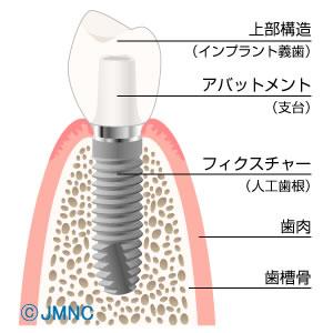 飯塚で最先端インプラントの基本構造