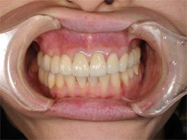 上顎前歯オールセラミックス施術After