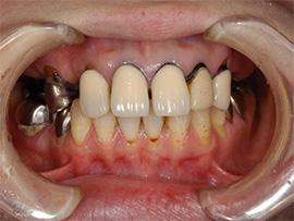 上顎前歯オールセラミックス施術Before