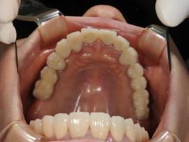 上顎臼歯部インプラント診療事例after