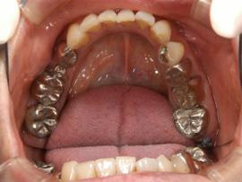 下顎臼歯ハイブリッド冠before