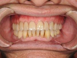 インプラント義歯after