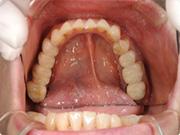 飯塚市の審美歯科ハイブリッドセラミック治療